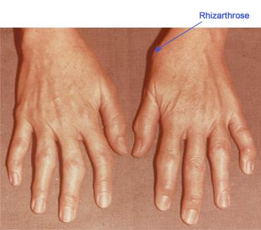 trata artroza pe degete