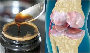 tratament de întărire articulară agenți de frecare articulați
