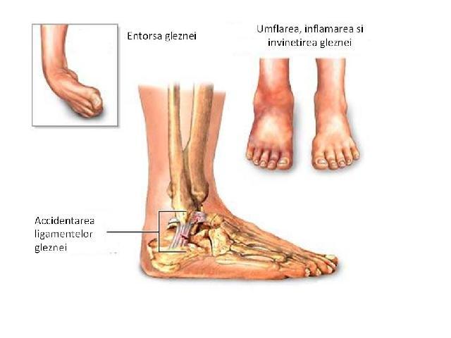 Leziuni la picior în tratamentul jucătorilor de fotbal