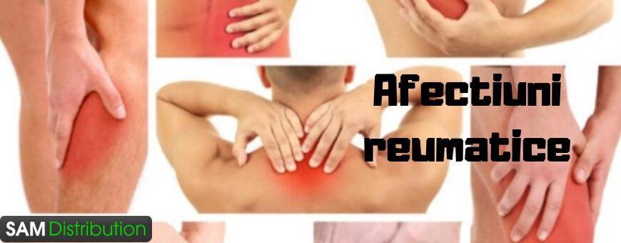 tratamentul articulațiilor de mușchi castor ce pastile eficiente pentru durerile articulare